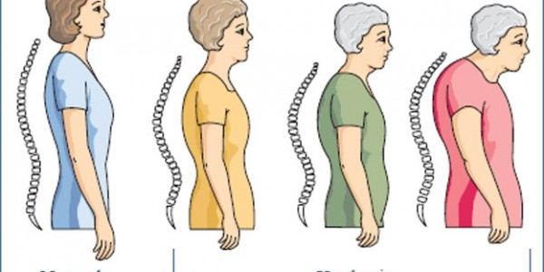 Age-related Hyperkyphosis