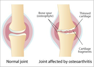 osteoarthritis of a joint
